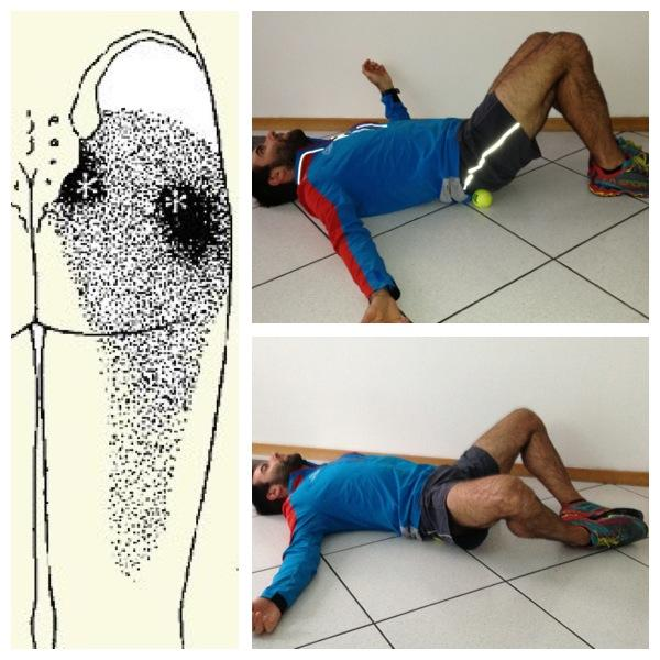 Trigger point del piriforme